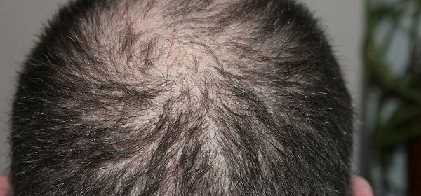 malemaxin 360 treatment for hairloss